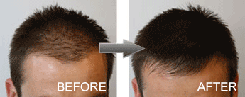 hair-fibres-male-before-and-after_grande.png