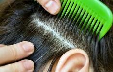 Болезни кожи головы и волос